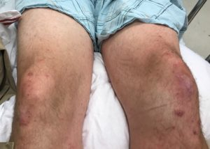 """Pete's """"not-so-pretty"""" knees. His left kneecap is """"not right."""""""